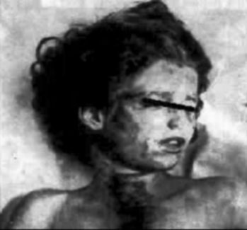 Mary Phagan autopsy photo; the indentation in her neck from the cord which strangled her clearly visible